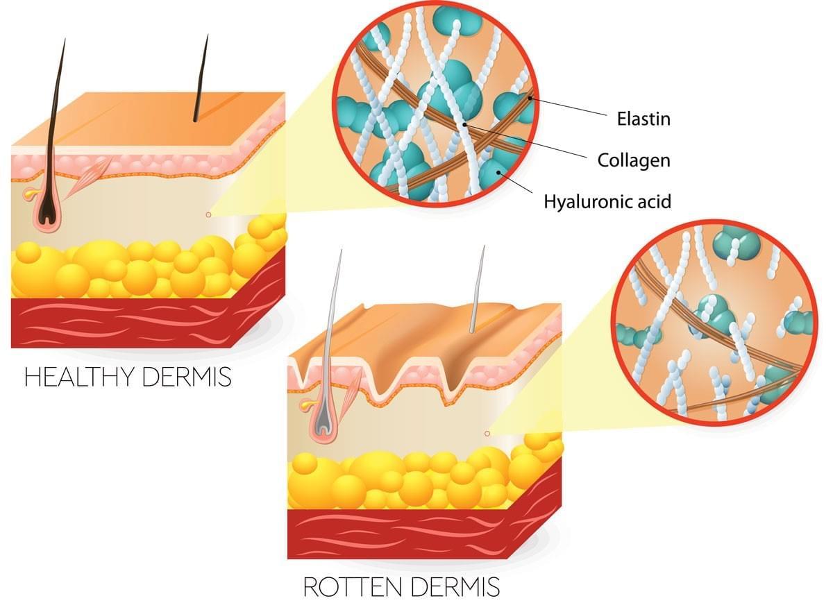 Dermis Rot