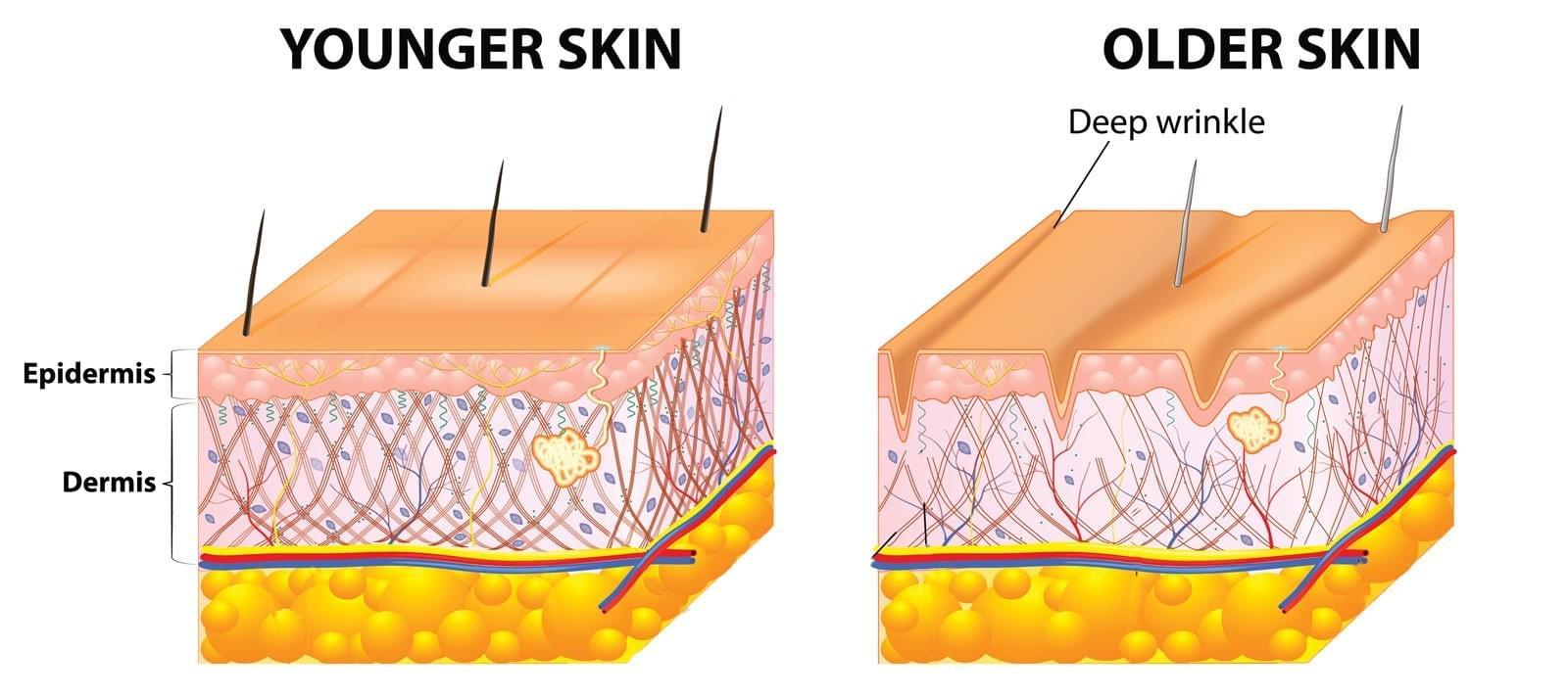 Young Skin vs. Old Skin